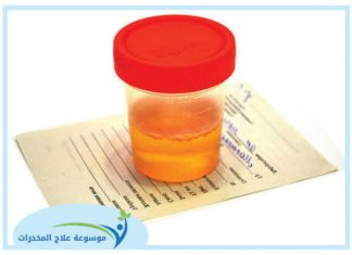 خطوات تحليل البول للمخدرات